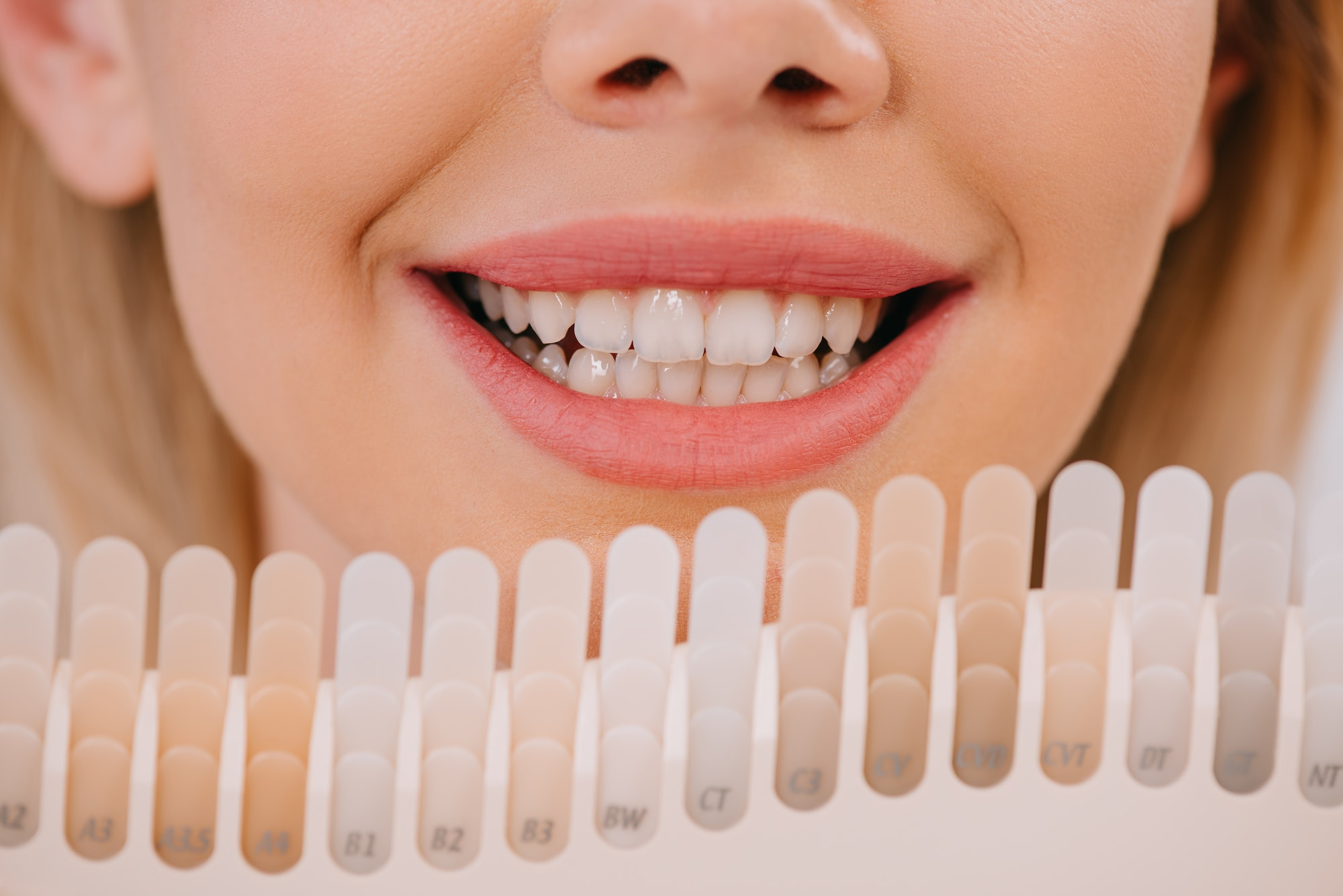 cropped view of smiling woman holding teeth color palette, teeth whitening concept
